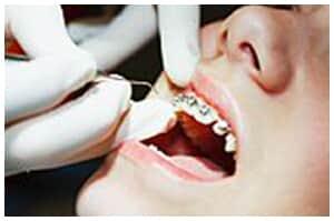 Ortodontista tem obrigação de resultado com tratamento de paciente