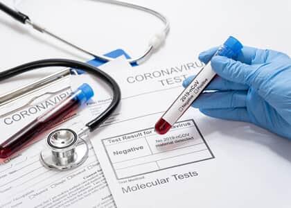 ANS pede e Justiça desobriga planos de saúde de cobrir testes de covid-19
